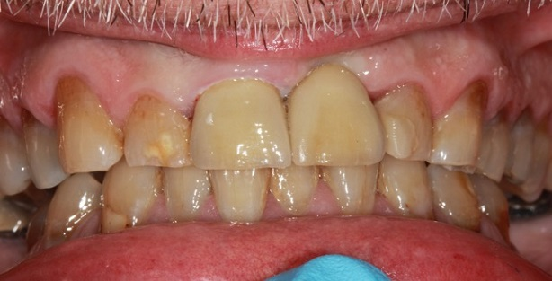 tooth implant after photo