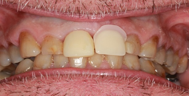 tooth implant before photo