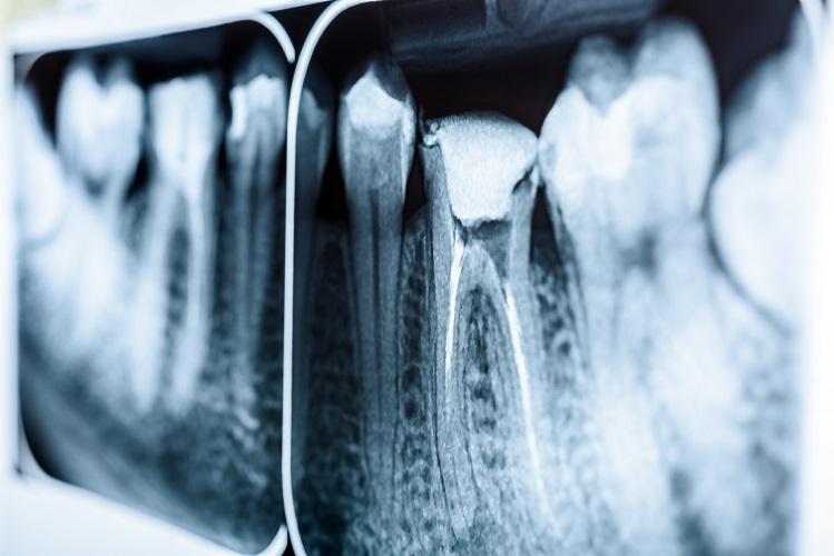 endodontist x ray