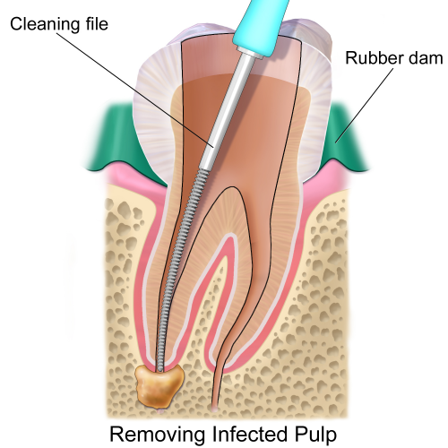 Rubber Dam removing infected pulp