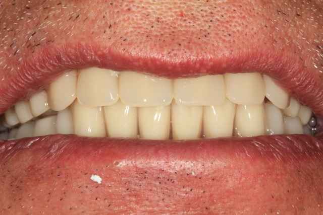 Fitted dentures After