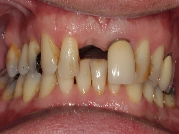 Dental Crown before photo