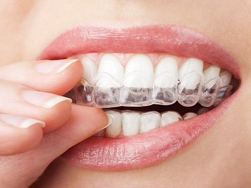 orthodontic clear braces